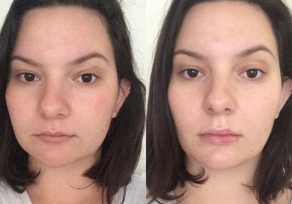Olivia Frescura Restylane Silk Lip Injections Before and After