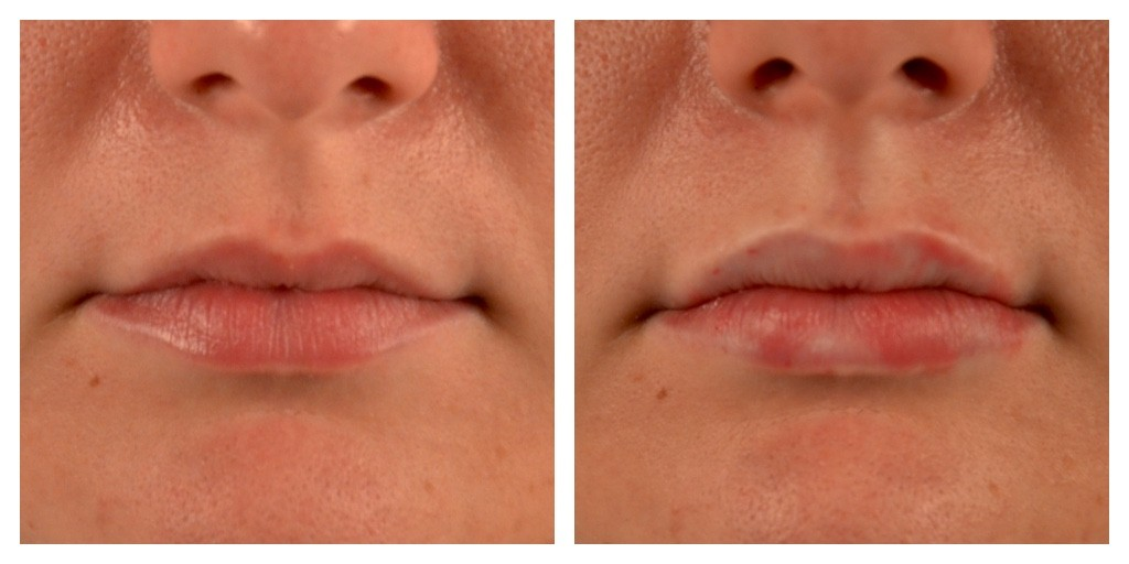 Olivia Frescura Restylane Silk Lip Injections Before and After Front